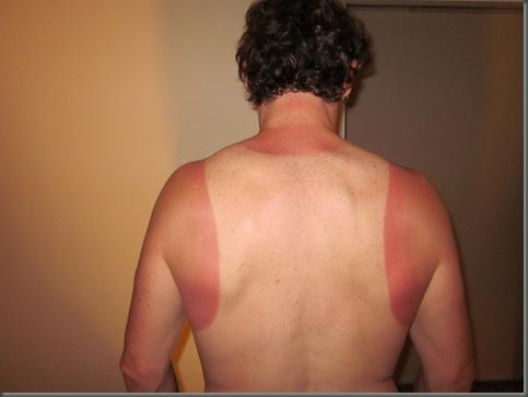 Sunburn!